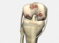 Patología Degenerativa Rodilla: Artrosis