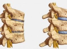 Patología Degenerativa: Artrosis
