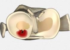Lesiones de los meniscos