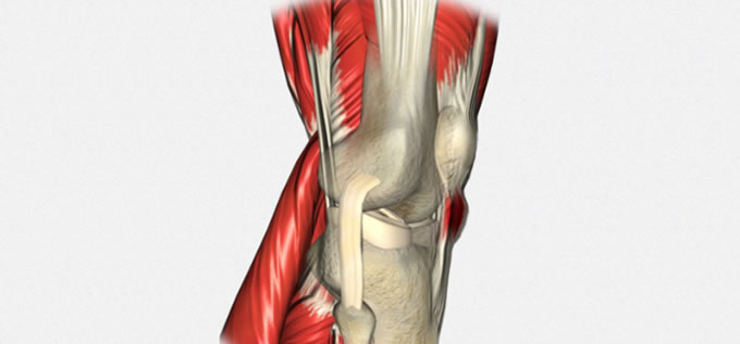 Tendinosas_Tendinitis_Rotuliano_1_slide