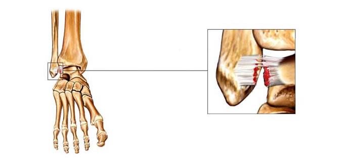 ligamentos_Esguince_3_slide