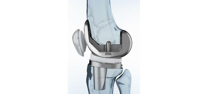 protesis_rodilla_AP2_slide