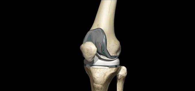 protesis_rodilla_PTR2_slide