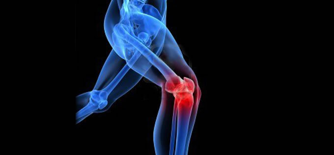 protesis_rodilla_PTR4_slide