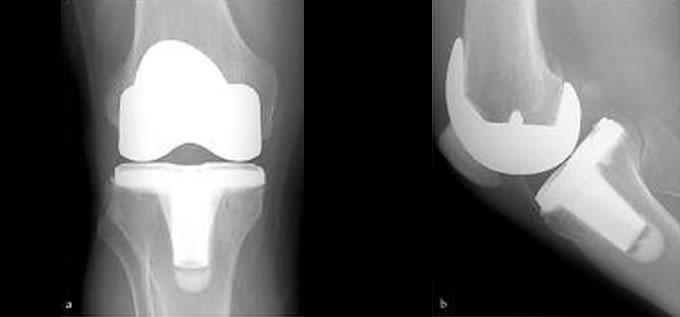 protesis_rodilla_RX_slide