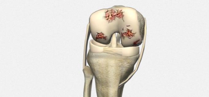 Artrosis_rodilla_1_slide