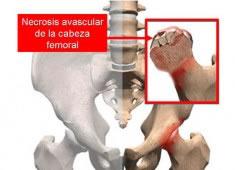 Necrosis ósea avascular