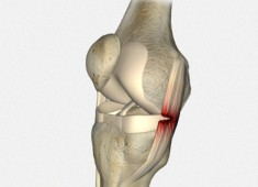 Ligamentos Laterales