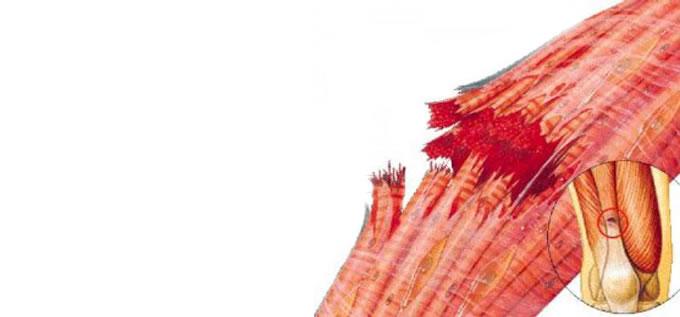 ligamentos_LesionMuscular_1_slide