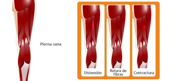 ligamentos_LesionMuscular_2_slide