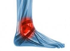 Lesiones de los Ligamentos