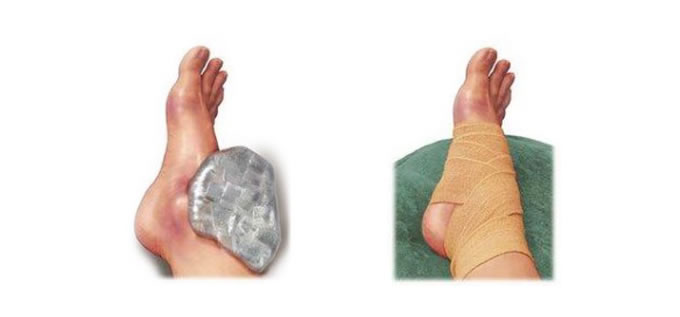 ligamentos_rest_4_slide